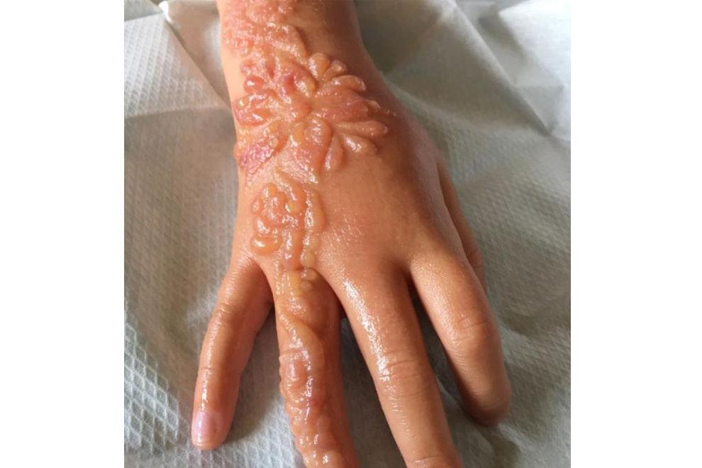 Mit Brandblasen ins Krankenhaus: Schlimme Verbrennungen durch Henna-Tattoo