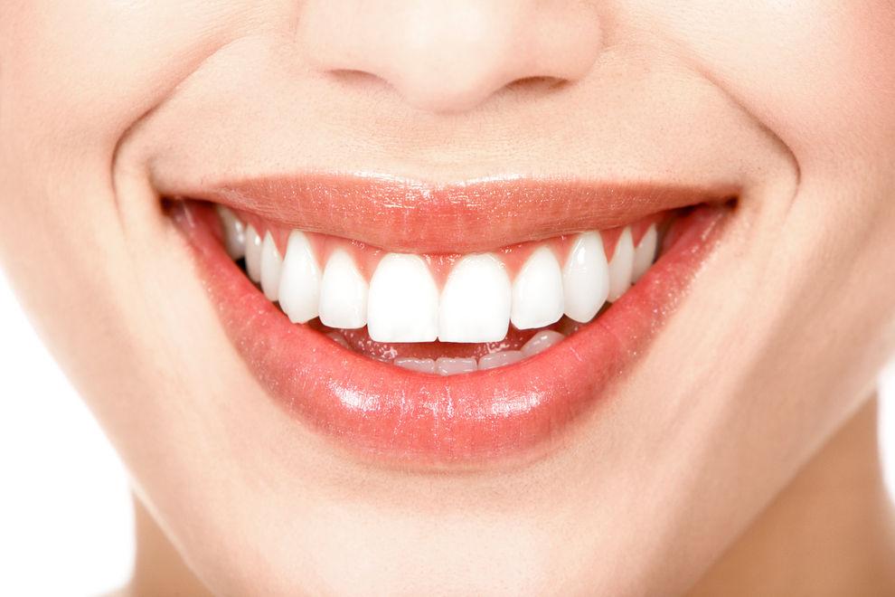 Zahnbleaching: 3 Früchte, die deine Zähne weißer machen
