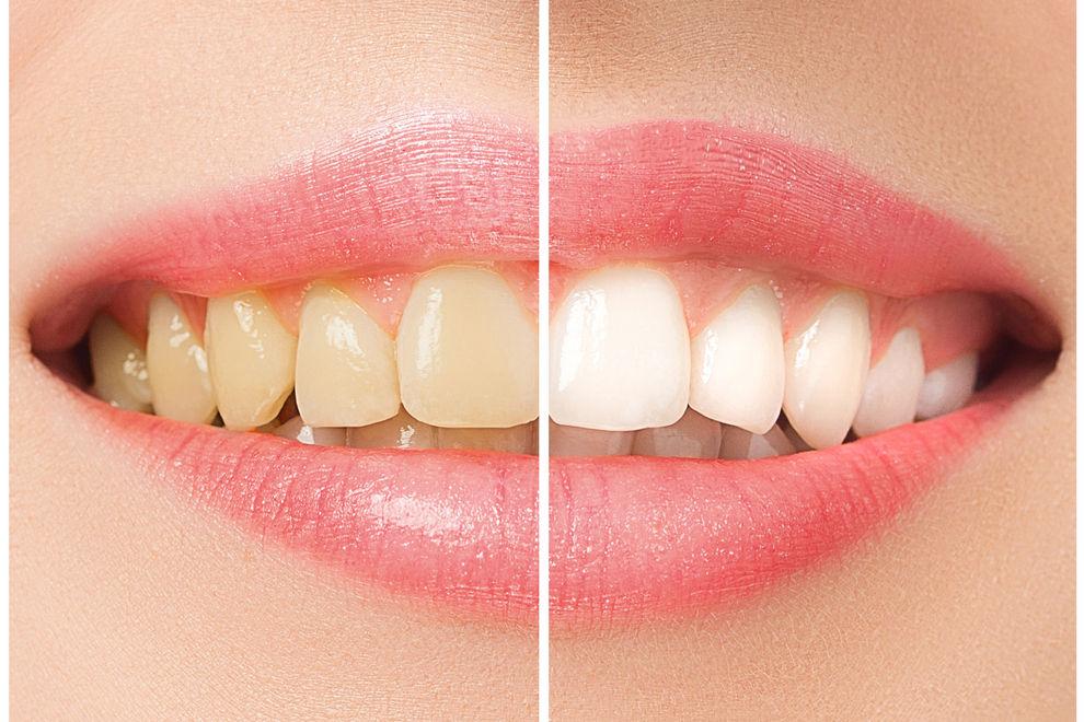 Diese 3 Obstsorten bleichen deine Zähne ganz ohne Chemie