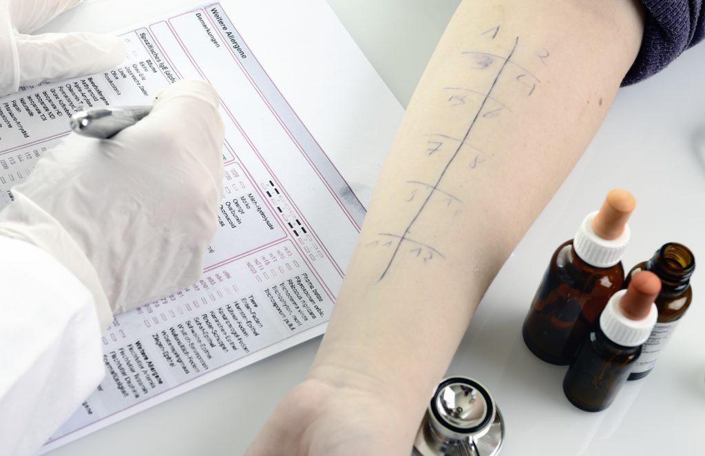 Echte Gewissheit bringt oft nur ein Allergietest beim Facharzt.