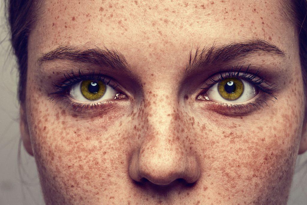 Wahr oder falsch? 8 Mythen über Sommersprossen und was dahinter steckt