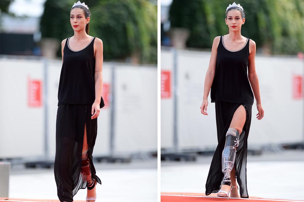 Beinamputierte Chiara Bordi wird Dritte bei Miss Italien-Wahl