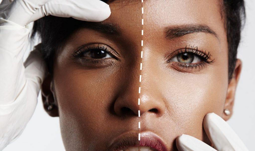 Skin-Bleaching: Wie gefährlich der Trend wirklich ist