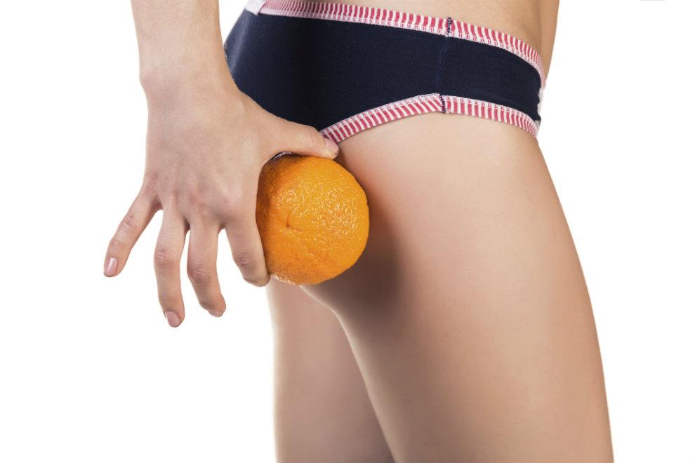 5 Tricks, die gegen Cellulite helfen