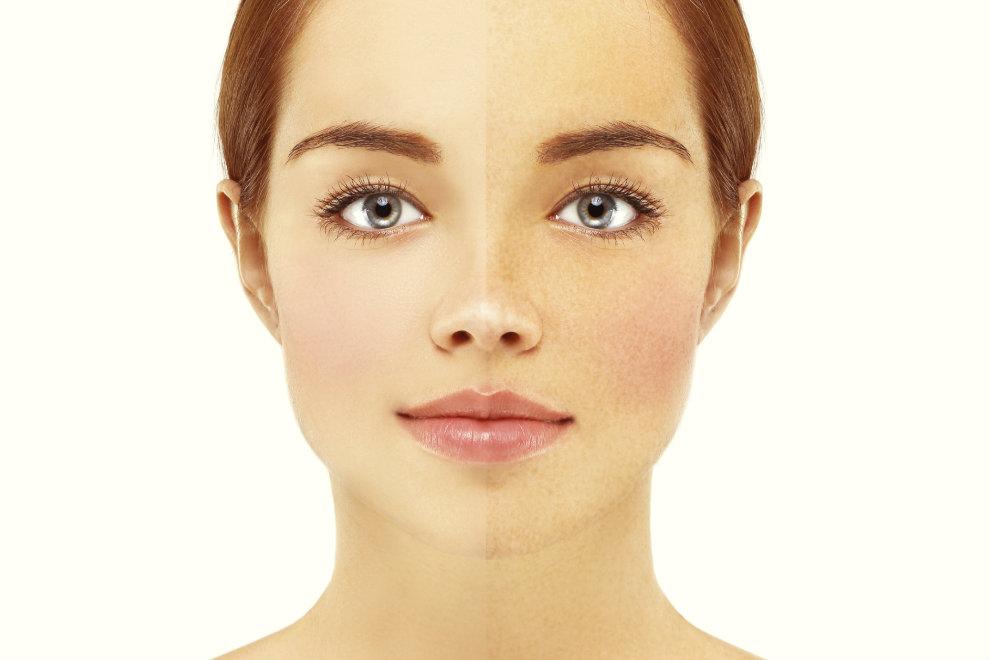 5 Tipps gegen Hautrötungen