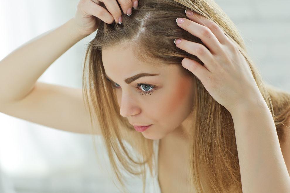 Die 5 schlimmsten Haarprobleme & was wirklich hilft!