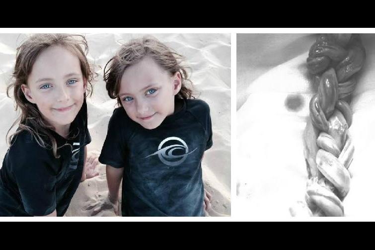 Zwillinge werden mit verflochtener Nabelschnur geboren