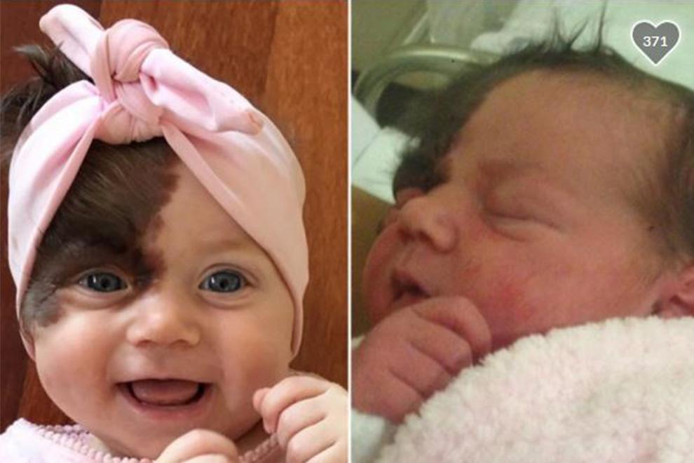 Eltern planen Muttermal ihres Kindes mit 7 Operationen entfernen zu lassen
