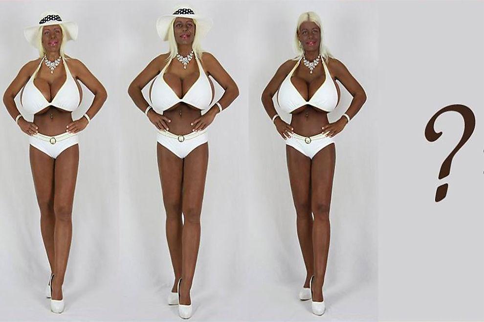 Die Frau mit den größten Brüsten Europas ließ sich nun zu einer schwarzen Barbie spritzen