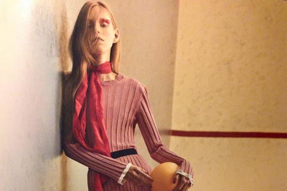 Dänisches Magazin schockt mit Magermodel