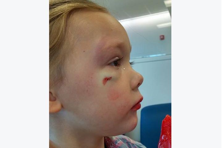 Krankenhaus-Mitarbeiter verharmlost Gewalttat an Mädchen