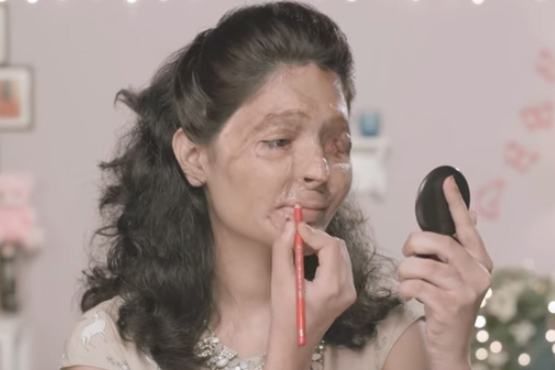 Frau zeigt sich nach Säureanschlag in Beauty-Tutorials