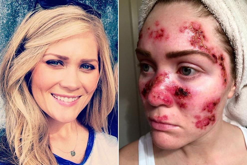 Diese Frau zeigt uns, was das Solarium ihrer Haut angetan hat
