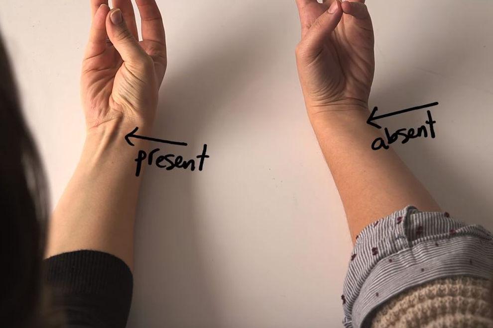 Sieht man bei dir die menschliche Evolution am Handgelenk?