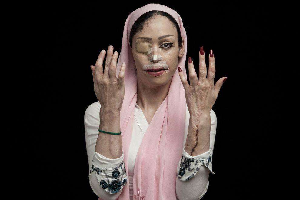 Dieses unglaubliche Fotoprojekt portraitiert Opfer von Säureangriffen