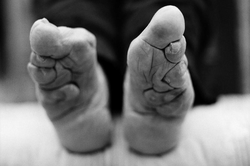 Fotograf zeigt schmerzhaftes Schicksal chinesischer Frauen