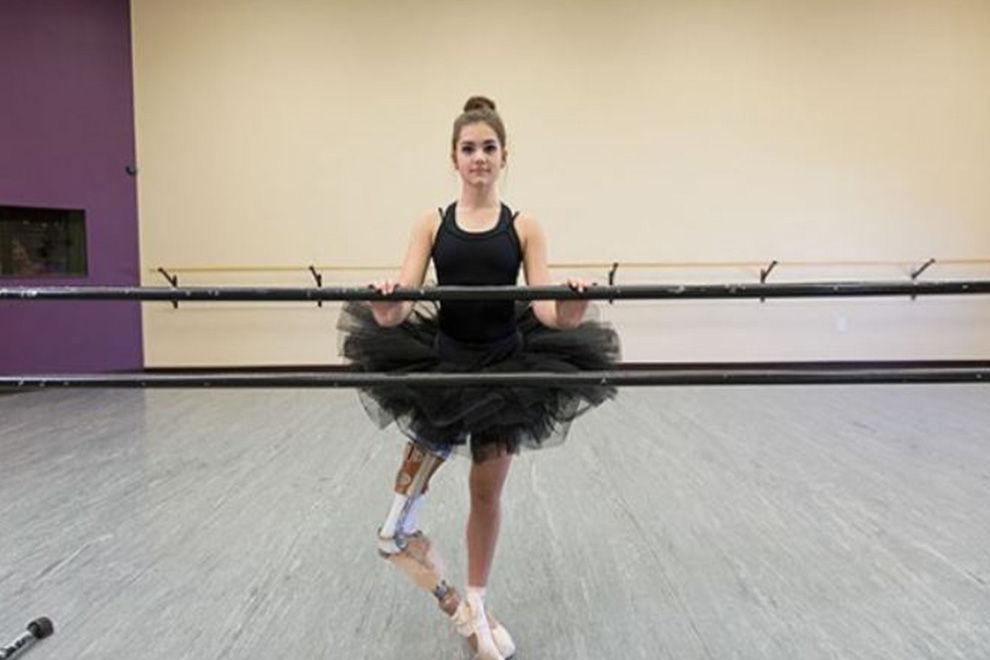 Dieses Mädchen tanzt mit Beinprothese