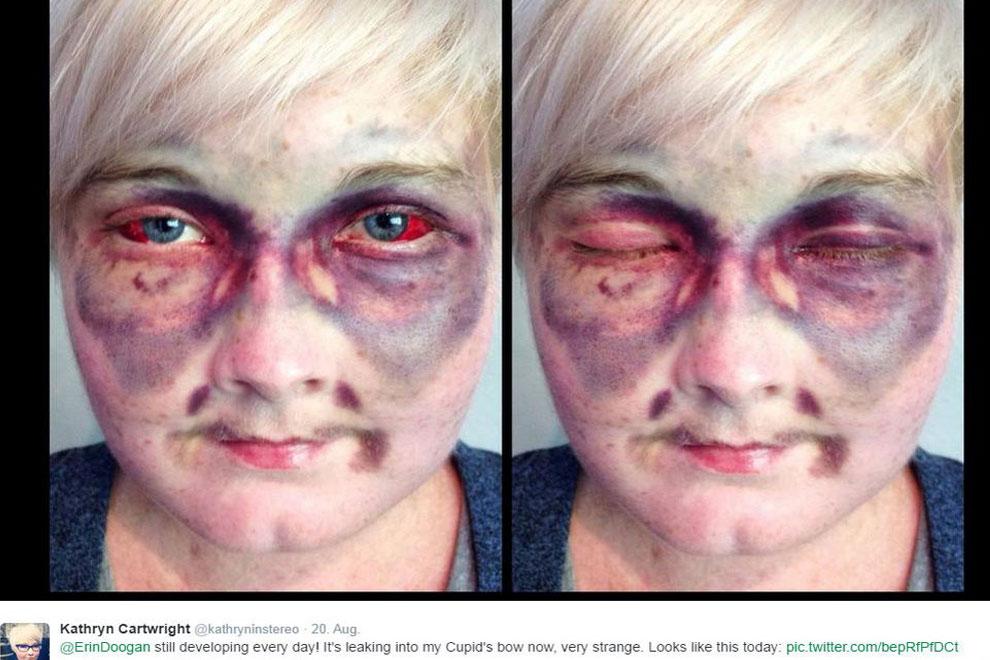 Krebspatientin postet schockierendes Selfie