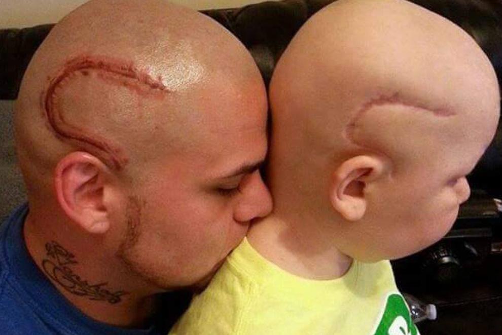 Deshalb haben Papa und Sohn exakt die gleiche Narbe am Kopf