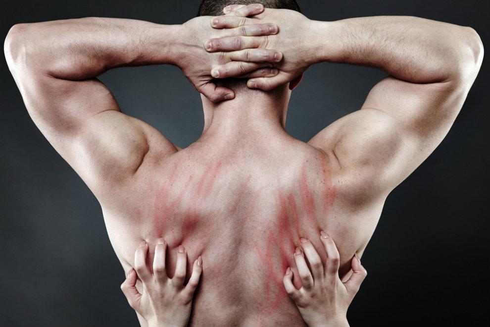 Die häufigsten Sexverletzungen