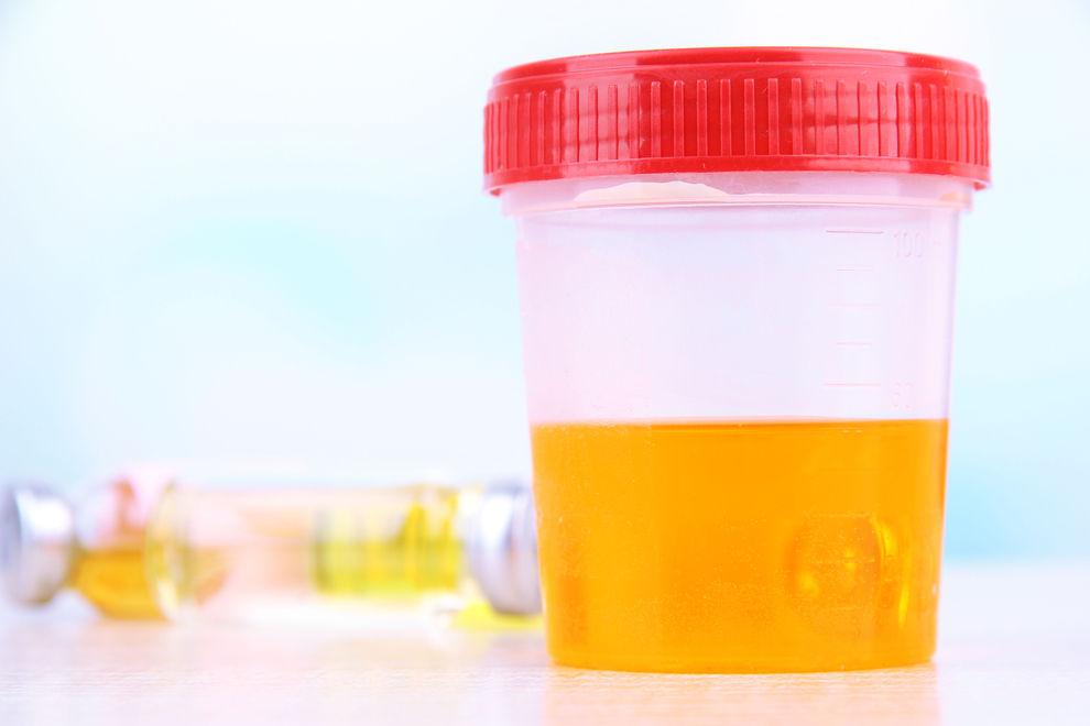 Das sagt dein Urin über deine Gesundheit aus