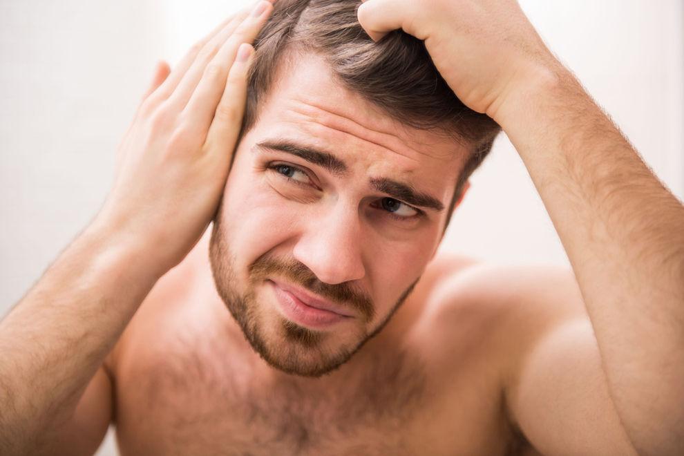 Männer mit diesem Merkmal neigen eher zu Haarausfall