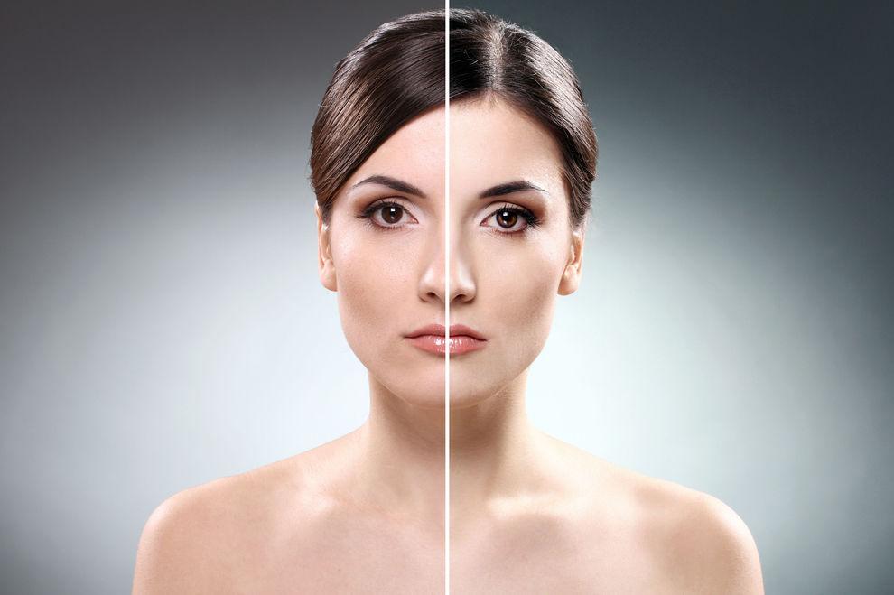 Britin erleidet schlimme Hautschäden nach Beauty-Behandlung