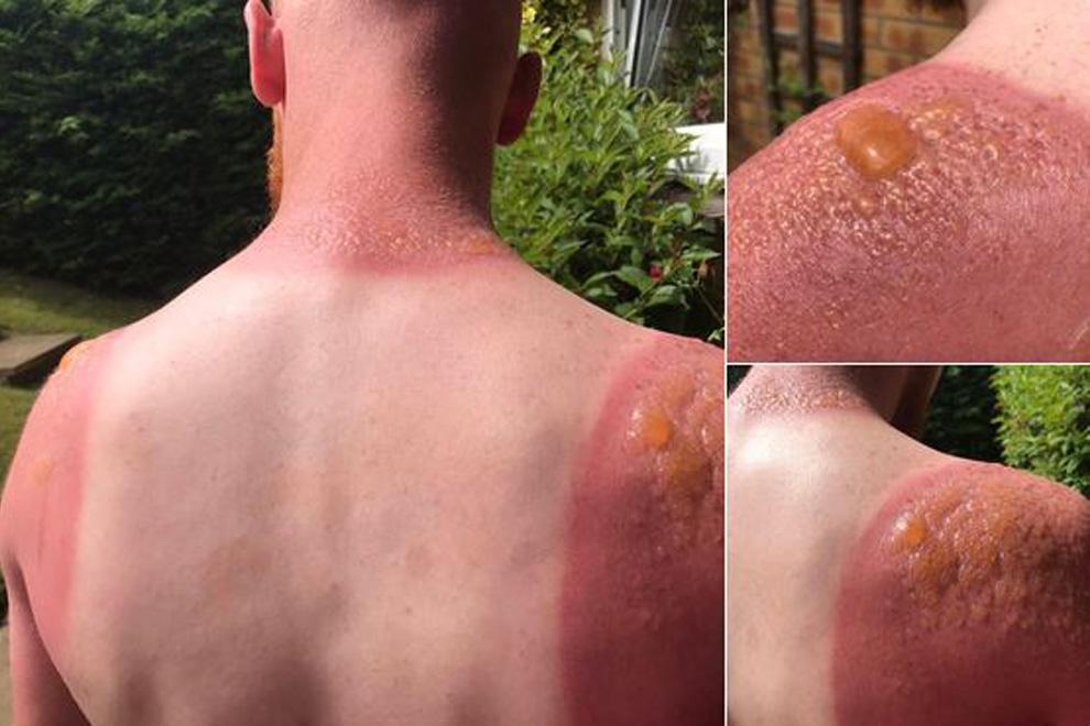 Diese Fotos beweisen, wie gefährlich die Sonne derzeit ist
