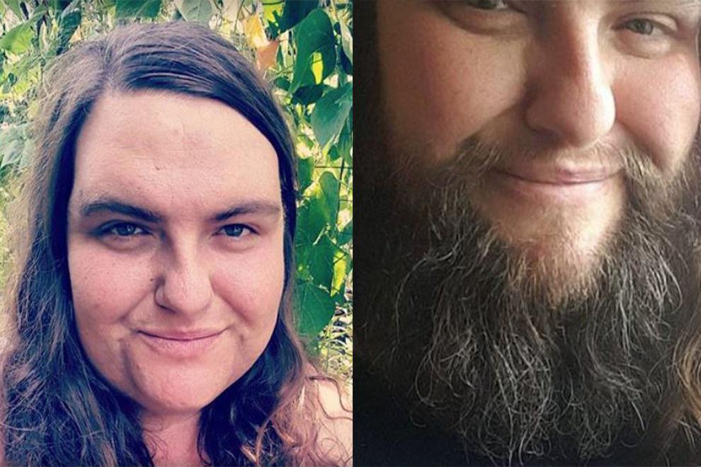 Deshalb hat diese Frau aufgehört, sich zu rasieren
