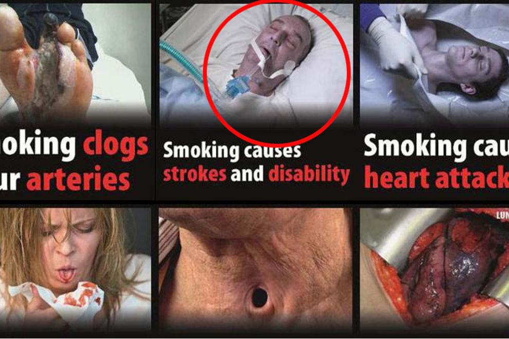 Österreicherin erkannte ihren toten Mann auf diesem Zigaretten-Schockbild
