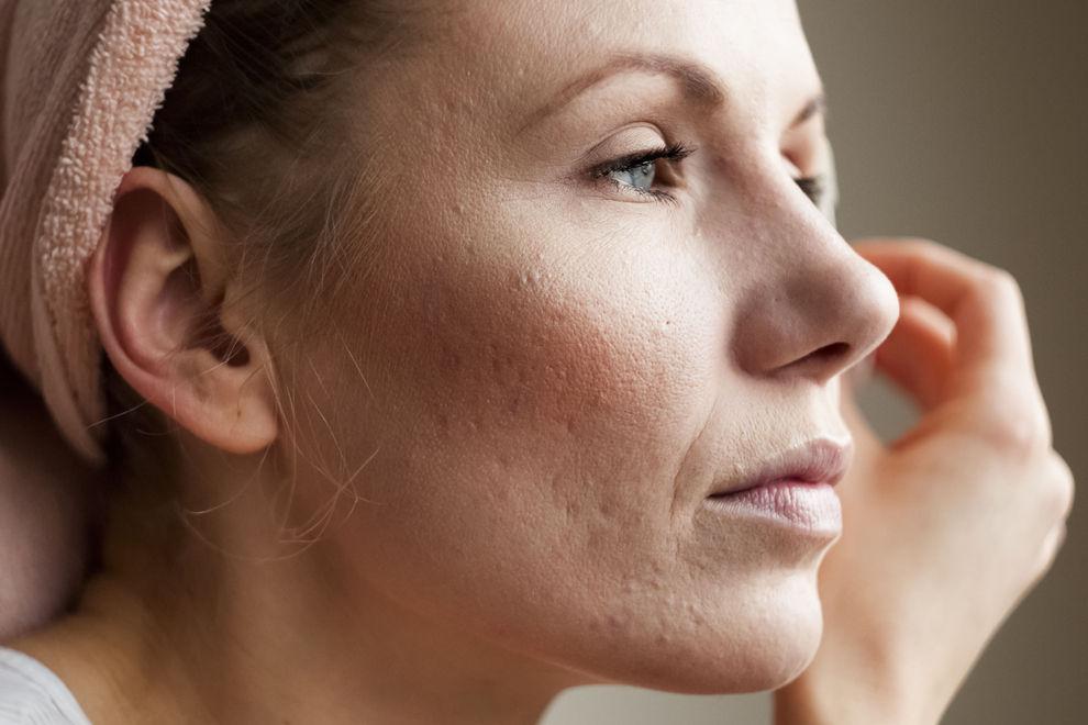 Das kann passieren, wenn du zu viel Make-up trägst
