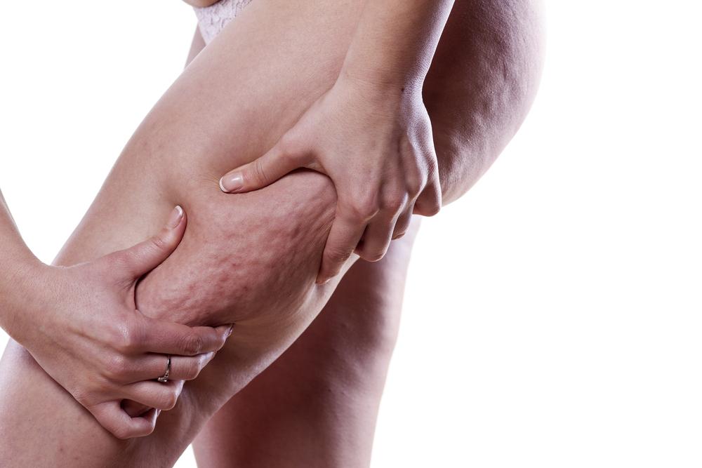 Cellulite: Diese 4 Dinge solltest du auf keinen Fall essen