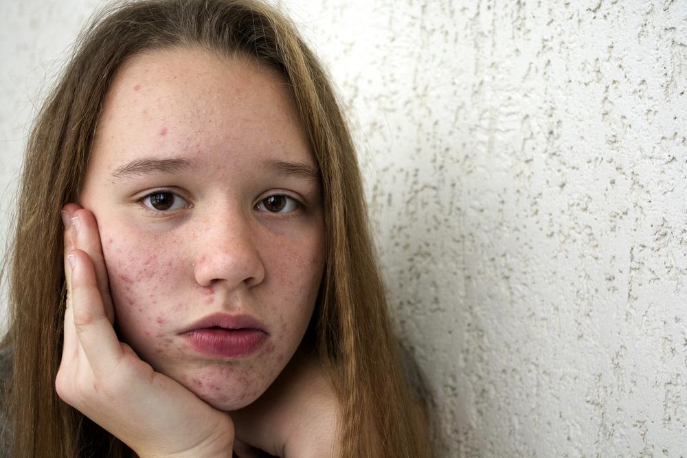Aknenarben entfernen: Diese Möglichkeiten gibt es
