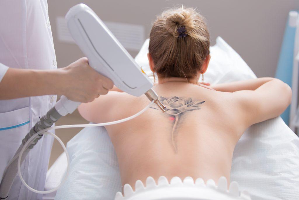 Tattoo entfernen: Was du unbedingt wissen solltest, bevor du dir ein Tattoo lasern lässt