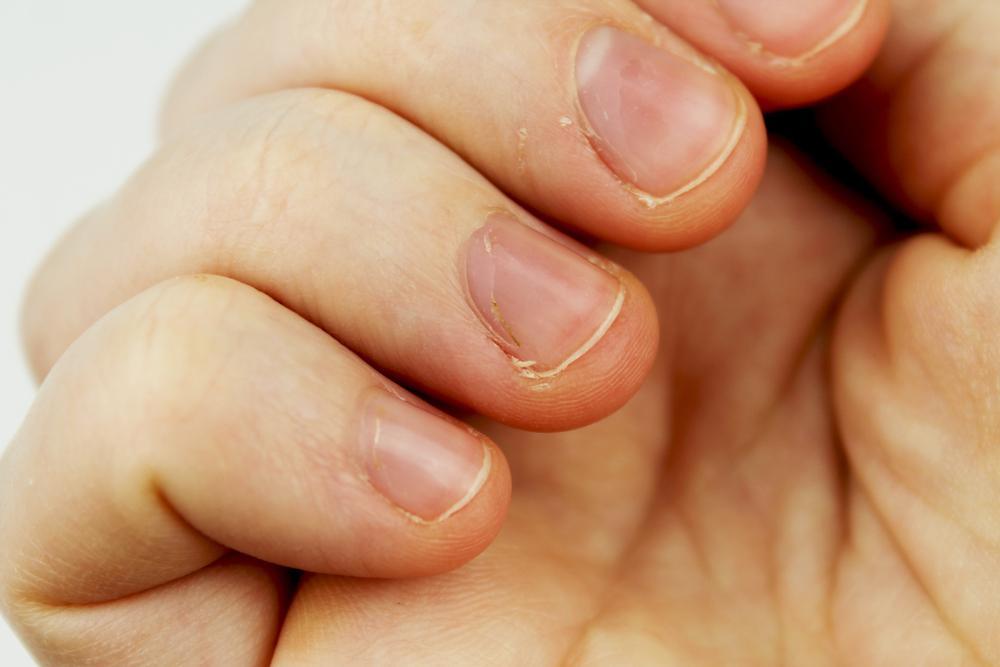Krebs wegen Nägelbeißen: Frau musste Daumen amputiert werden