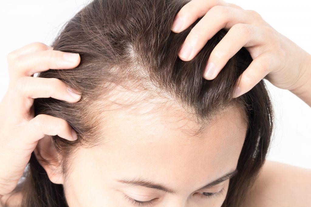 Dieser Duft soll Haarausfall vermindern