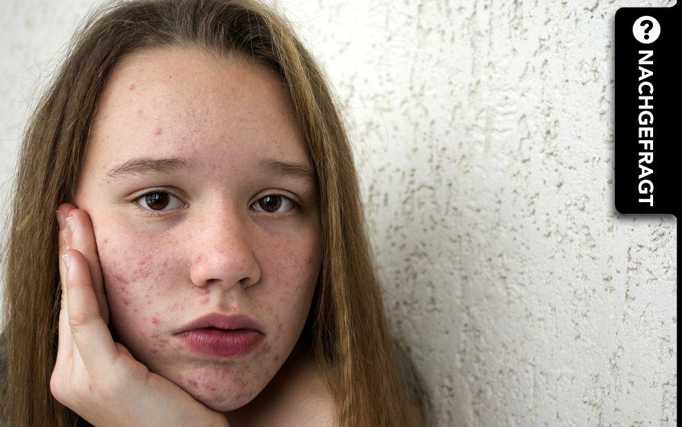 Akne-Narben: Diese Möglichkeiten zur Entfernung gibt es