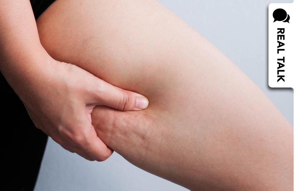 Cellulite-Shaming: Warum ist das eigentlich immer noch Thema?