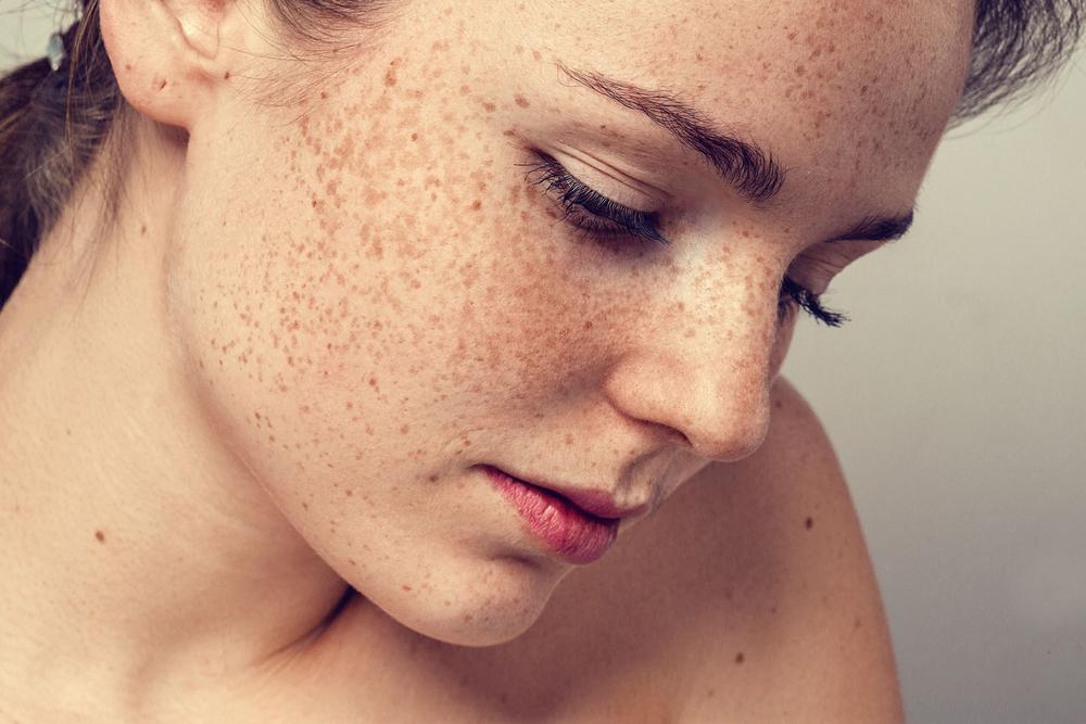 Sommersprossen und Leberflecken: Das ist der Unterschied