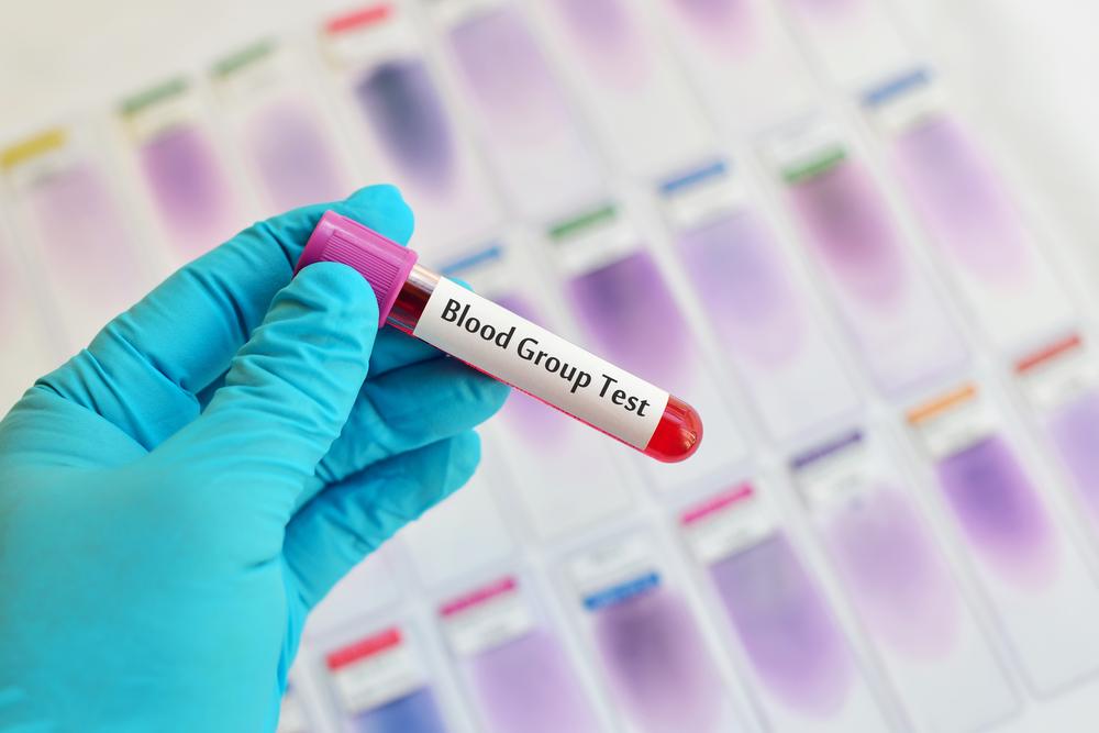 Das sagt deine Blutgruppe über deine Persönlichkeit aus