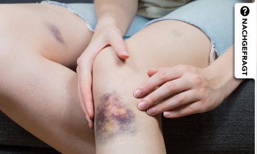 Ständig blaue Flecken: Das könnte die Ursache sein