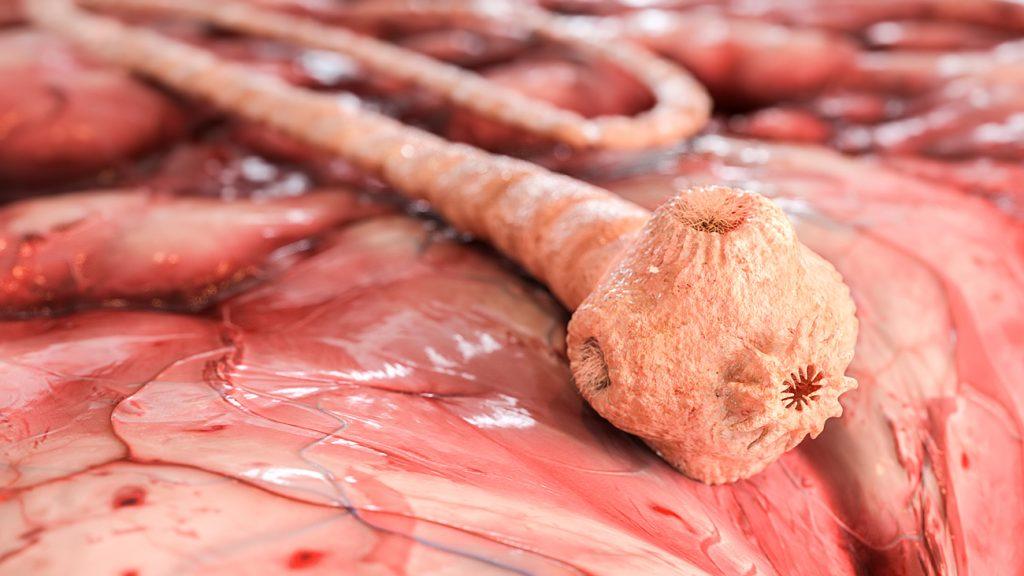 Sushi-Liebhaber scheidet 1,70 Meter langen Bandwurm aus