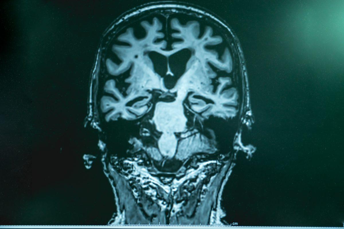 Alzheimer verbreitet sich ähnlich wie Infektion im Gehirn