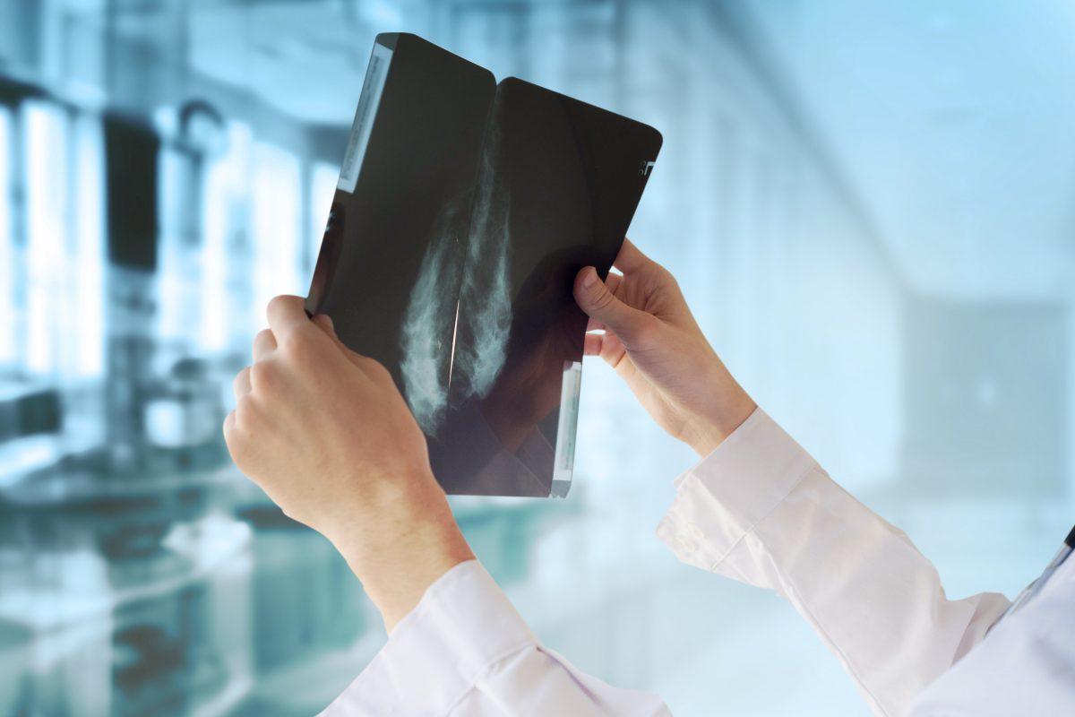 Brustkrebs: Künstliche Intelligenz könnte bei Früherkennung helfen