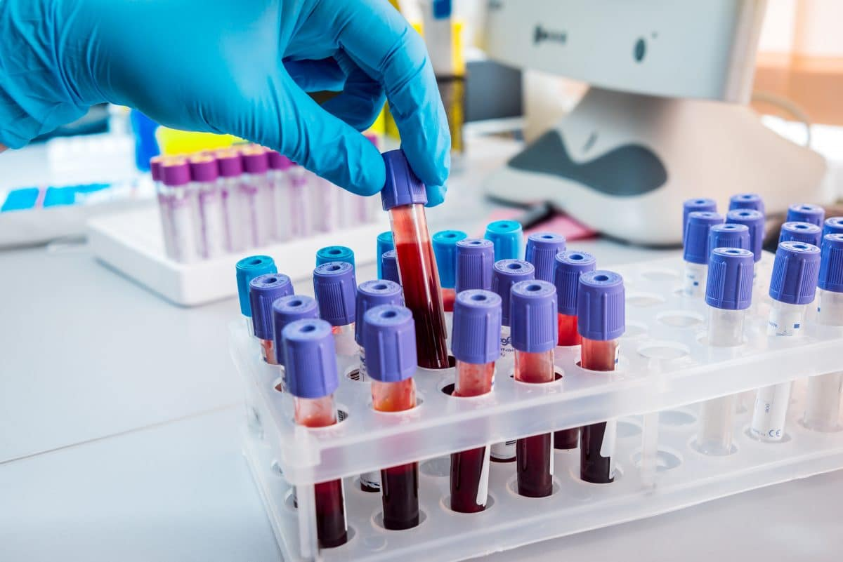 Neuer Coronavirus-Test erkennt, ob man jemals infiziert war