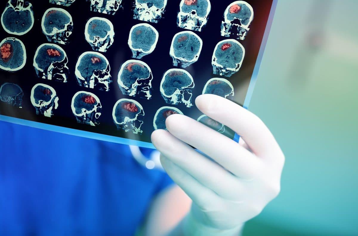 Coronavirus kann Gehirn befallen: Experten suchen nach Antworten