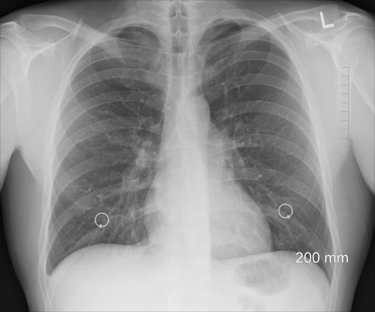 Das richtet das Coronavirus mit unserer Lunge an