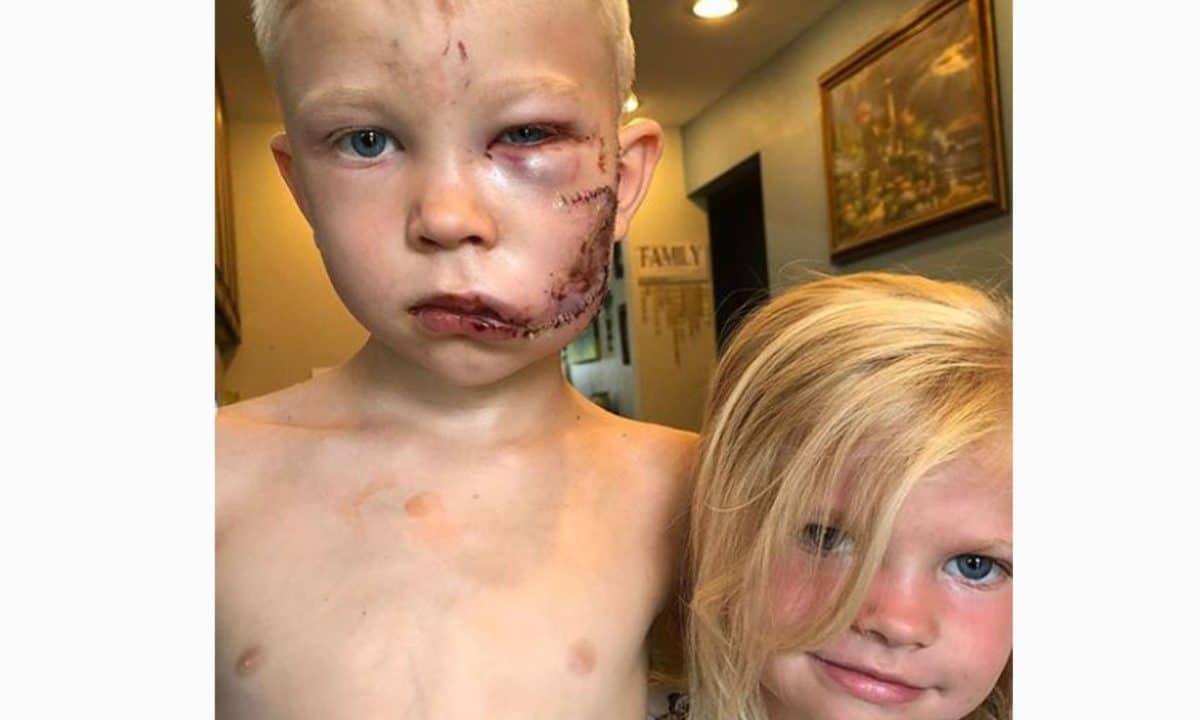 Bub wirft sich bei Hundeangriff vor seine Schwester