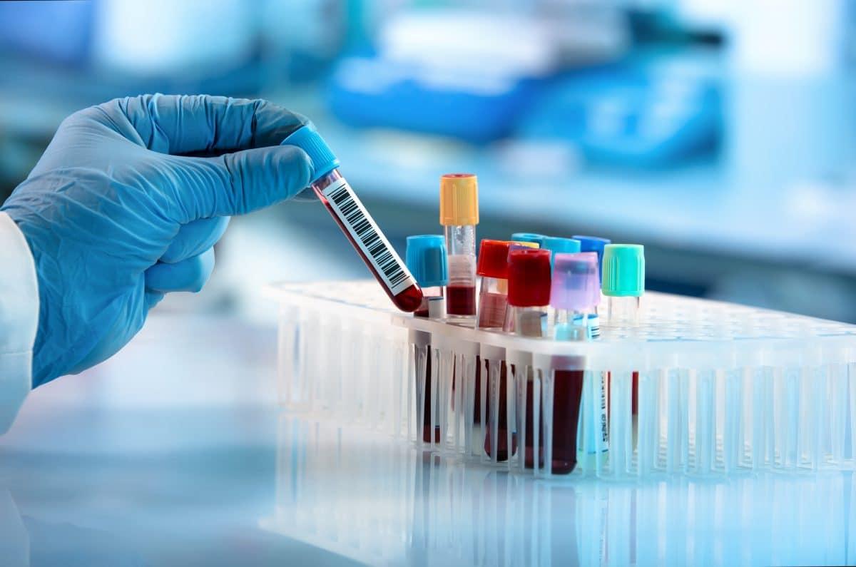 """Chinesische Forscherin behauptet """"Coronavirus kommt aus Labor"""""""