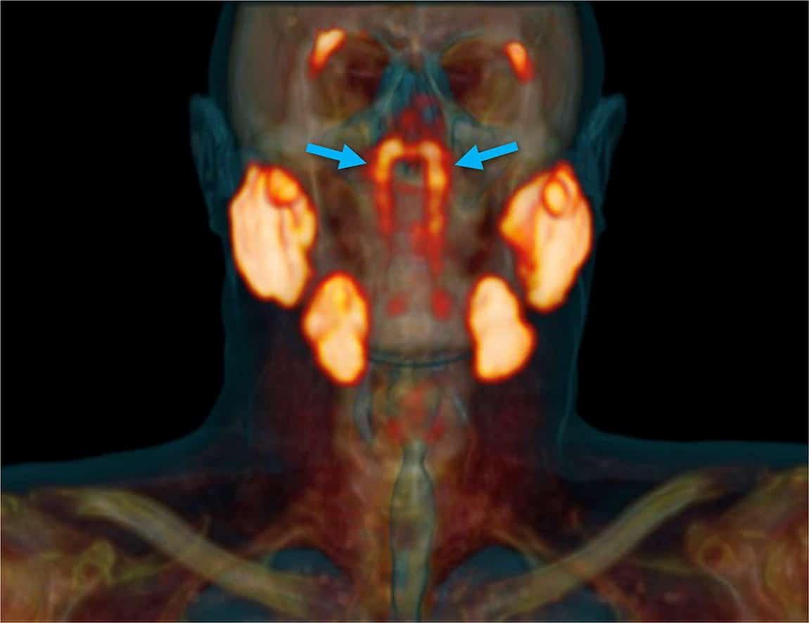 Wissenschaftler finden neues Organ im Rachenraum